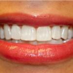 Причины, влияющие на чувствительность зубов