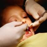 Серебрение детских зубов